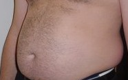 Stomach Fat Image